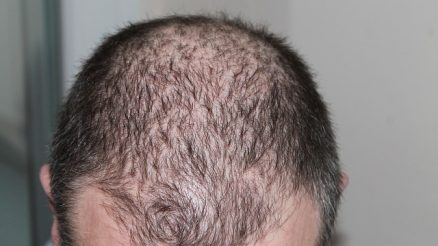 Hair Loss Cure: How to effectively treat hair loss